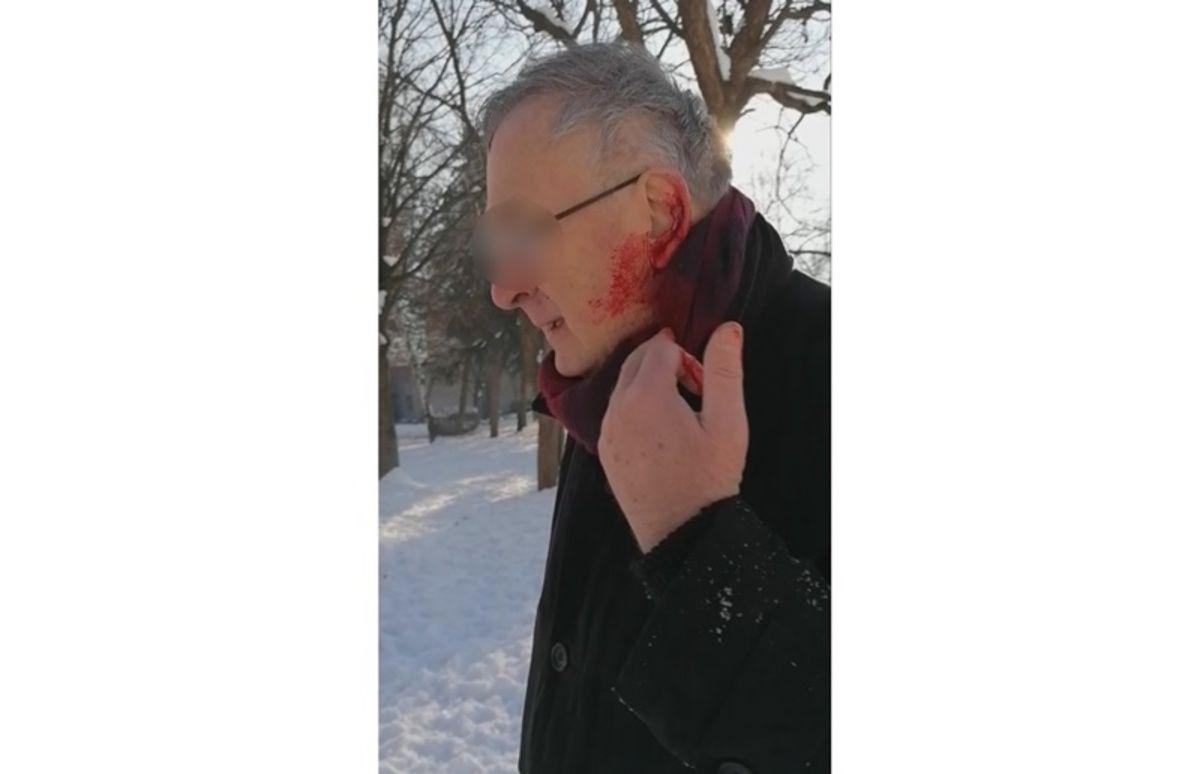 Нападнут мушкарац у Пријепољу док је шетао парком, фото: Фејсбук